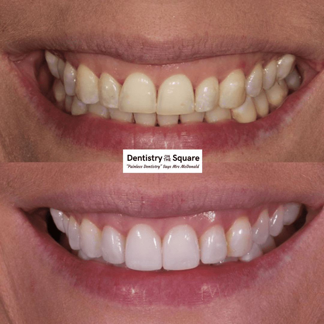 Dentistry On The Square Smile Gallery